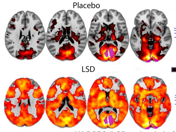 lsd-brain-scan-images
