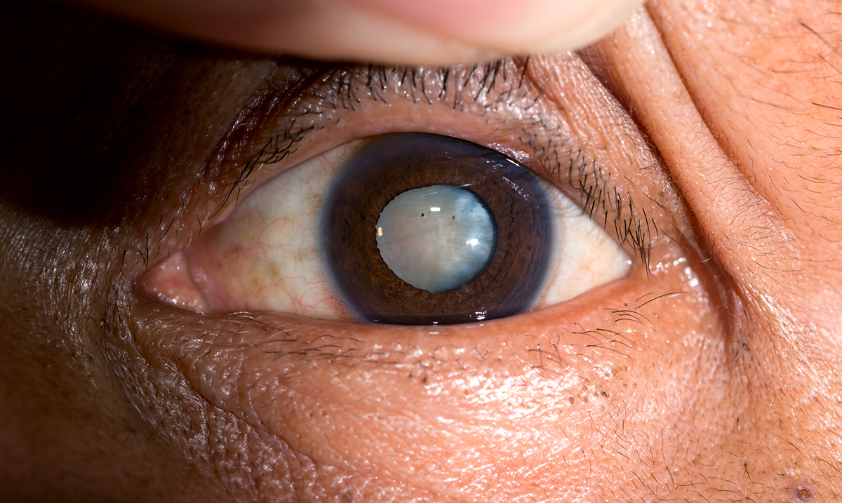 Goodbye Cataracts! You Can Now Get Rid Of Cataracts Without Using Surgery