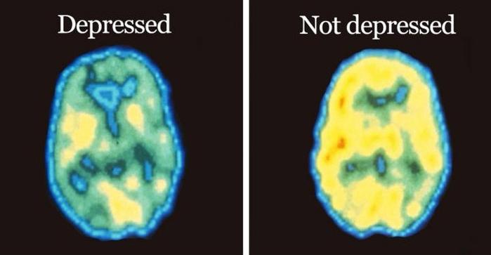 depression, major depressive disorder, mdd, brain injury