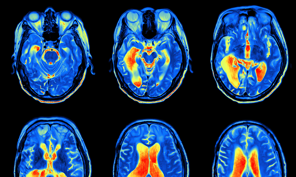 New Research Says Depression Is Not A Choice, It's A Form Of Brain Damage