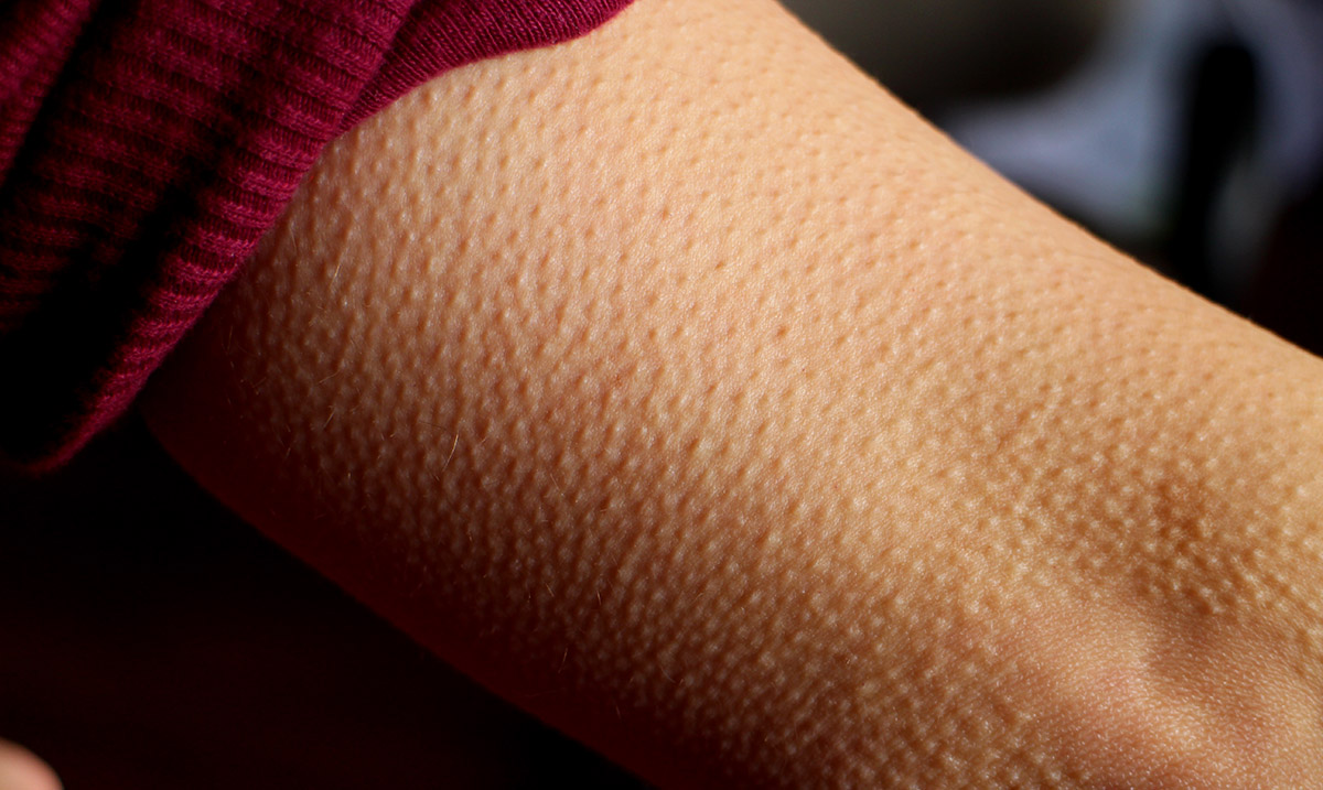 If You Get Goosebumps While Listening to Music Your Brain Is Very Unique