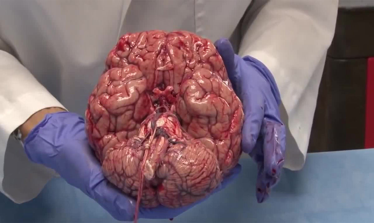 Incredible Footage of a Freshly Removed Human Brain Proves that Science Is Amazing