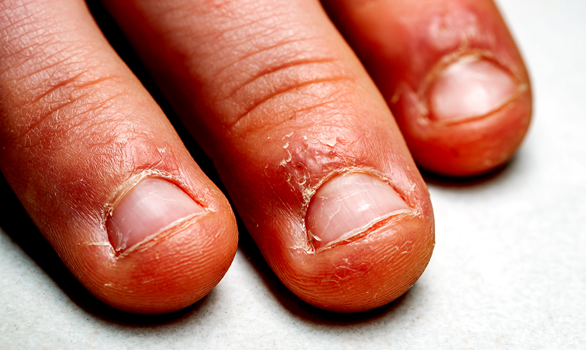 What Psychology Reveals About A Nail Biter's Personality