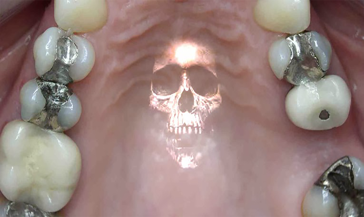 6 Deadly Diseases That Have Been Linked to Mercury Fillings