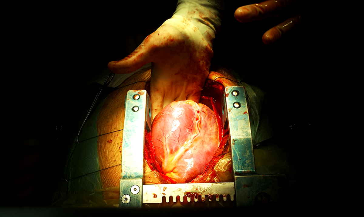 Heart Surgeon Speaks Out About The True Cause of Heart Disease – We Are All Being Lied To