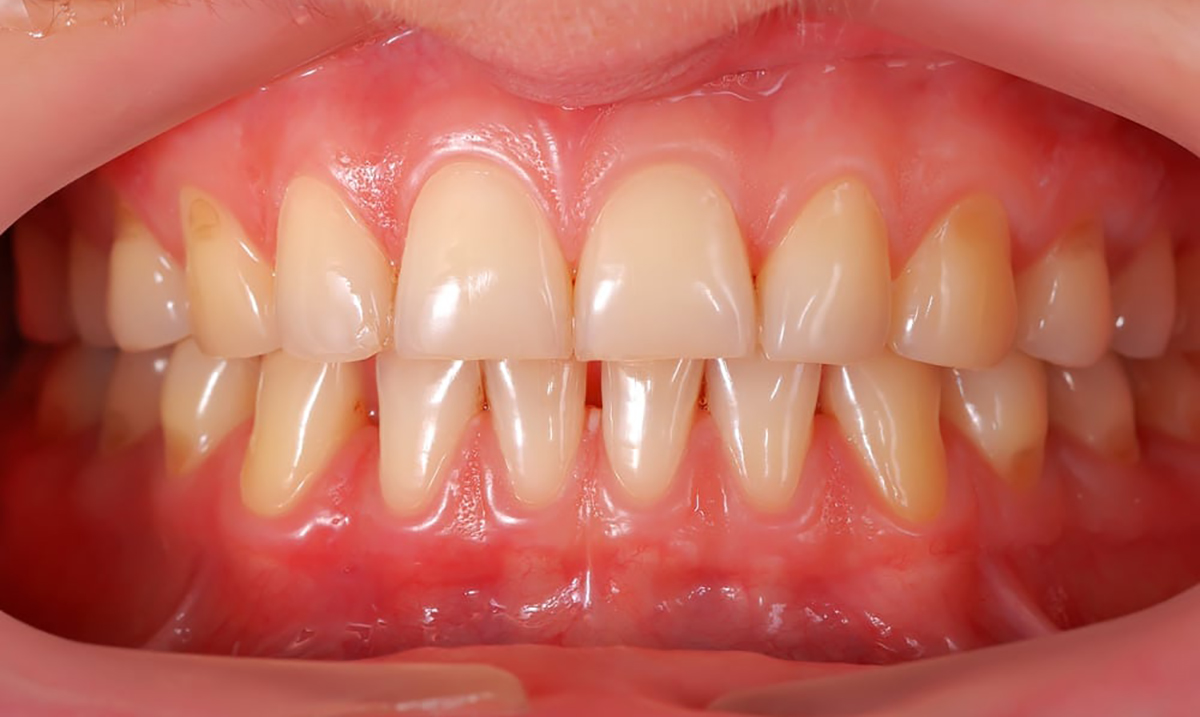 how to heal a cut on gums