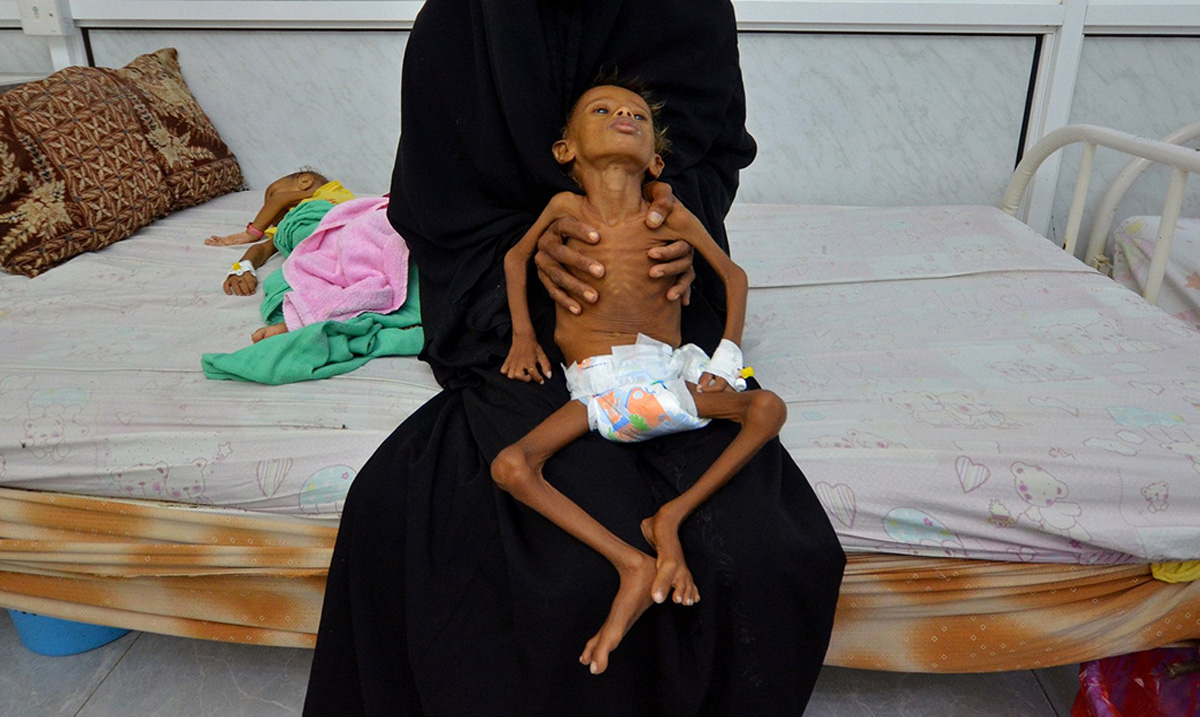 The U.N Is Warning the World That Over 10 Million Yemeni Civilians Will Die By the End of the Year