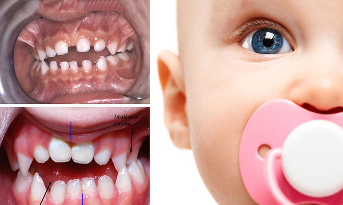 9 Harmful Side Effects of Baby Pacifiers