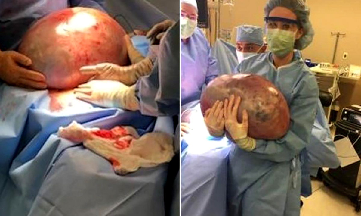 Alabama Woman Has 50-Pound Ovarian Cyst Removed After Being Told to Lose Weight