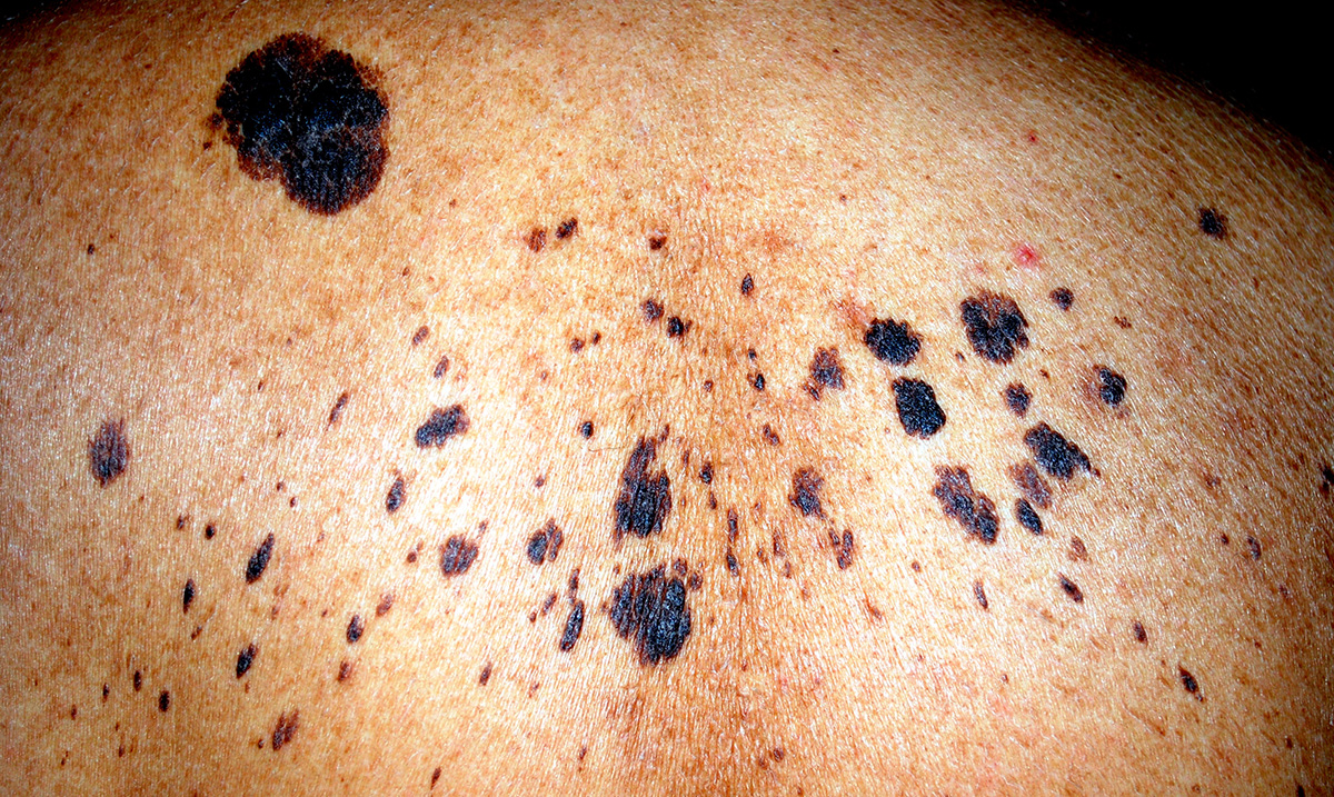 How to Visually Identify the Various Forms of Skin Cancer (Pictures)