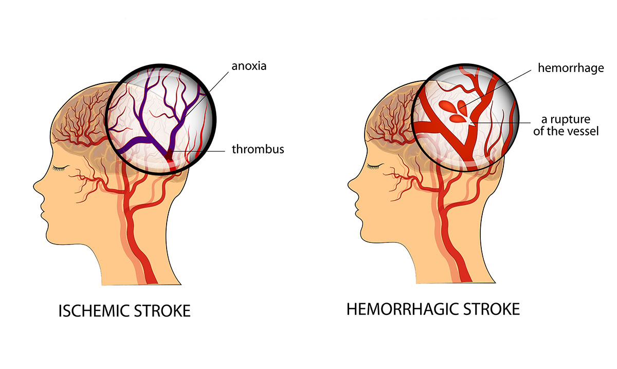 10+ Warning Signs That You Are About To Have A Stroke