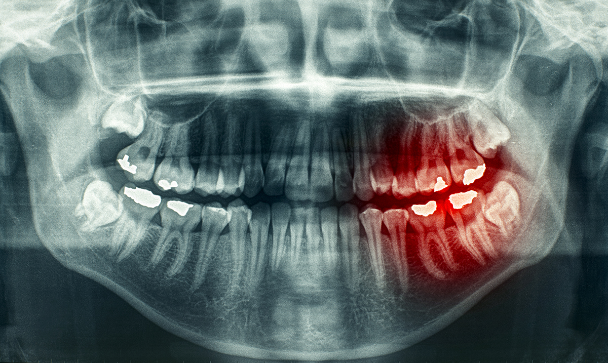 A Terrifying Link Has Been Discovered Between Terminally-Ill Cancer Patients and This Particular Dental Procedure