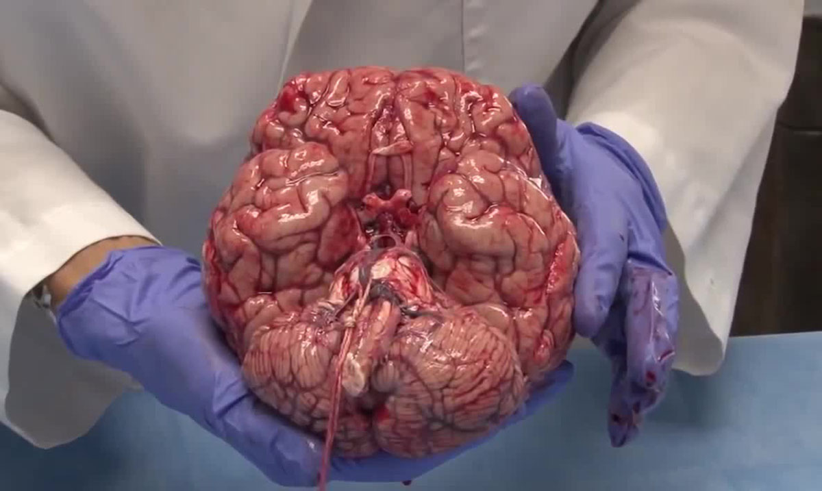 You Will Be Amazed By This Video of the Human Brain Being Removed