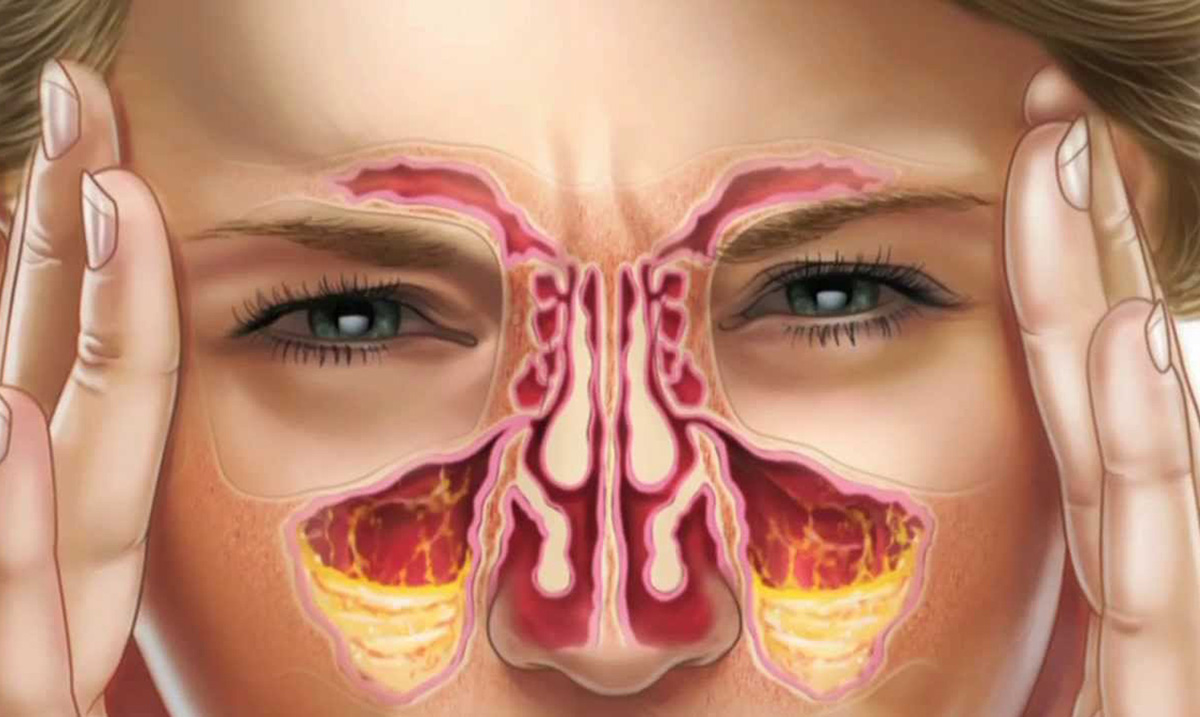 How To Clear Extremely Blocked Sinuses Naturally In Just 1 Minute