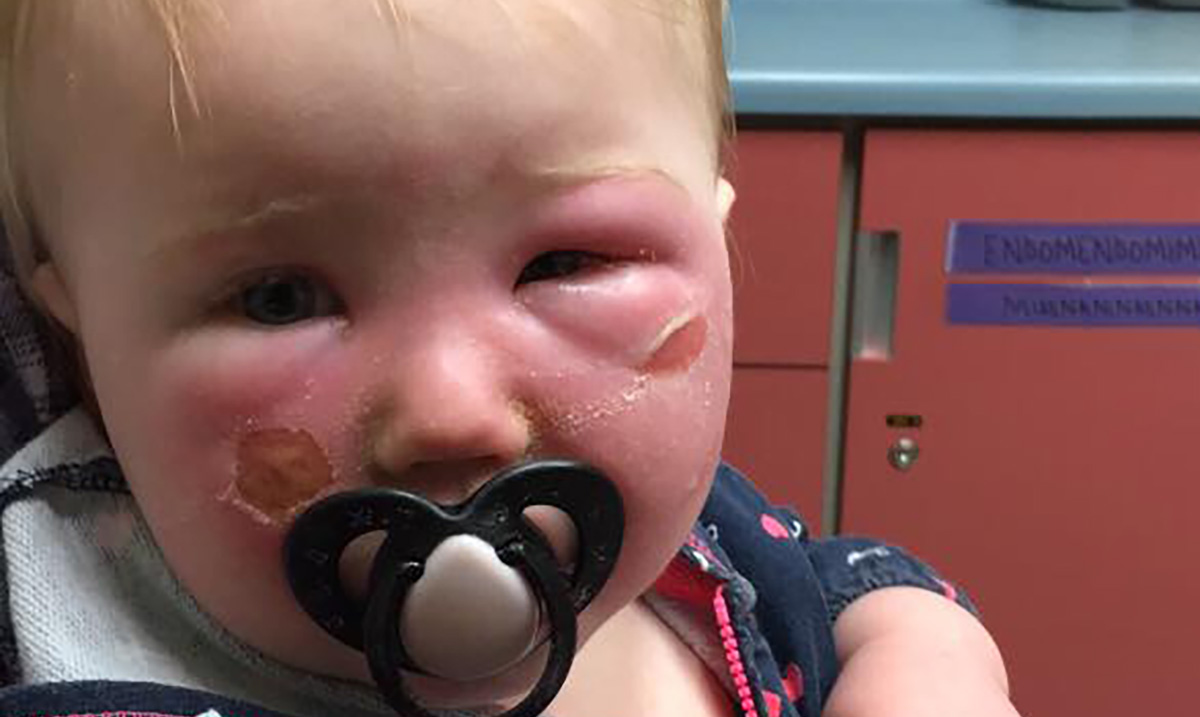 Mother Posts Warning About Sunscreen After 14-Month-Old Daughter Ends Up In ER
