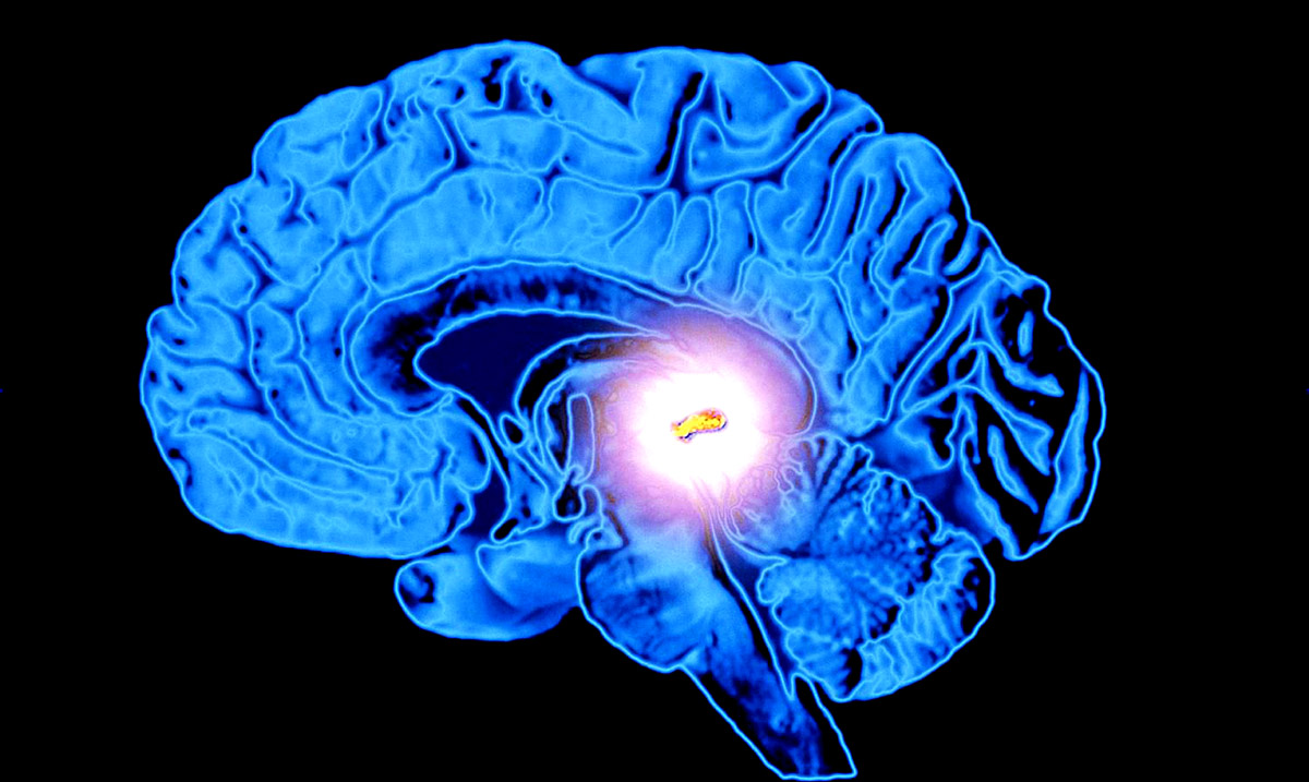 13 Ways To Decalcify Your Pineal Gland