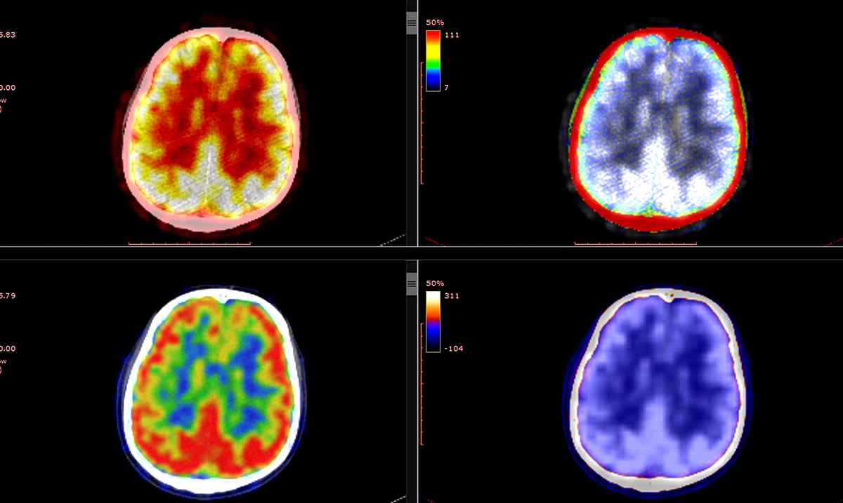 9 Ways Childhood Trauma Alters Your Brain