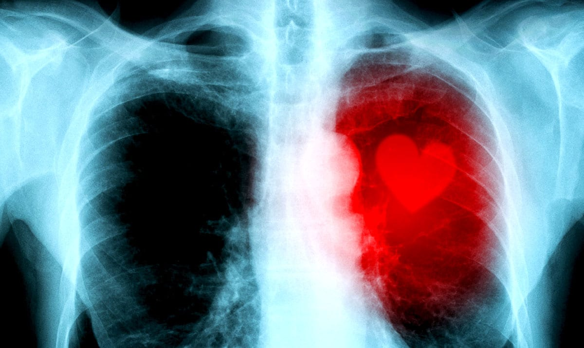Why So Many Women Miss The Major Signs Of A Heart Attack