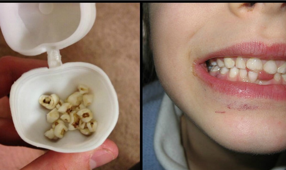 The Surprising Reason Why Saving Your Children's Teeth May Save Their Lives One Day