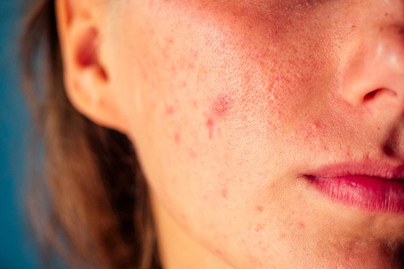 womans face with pimbles