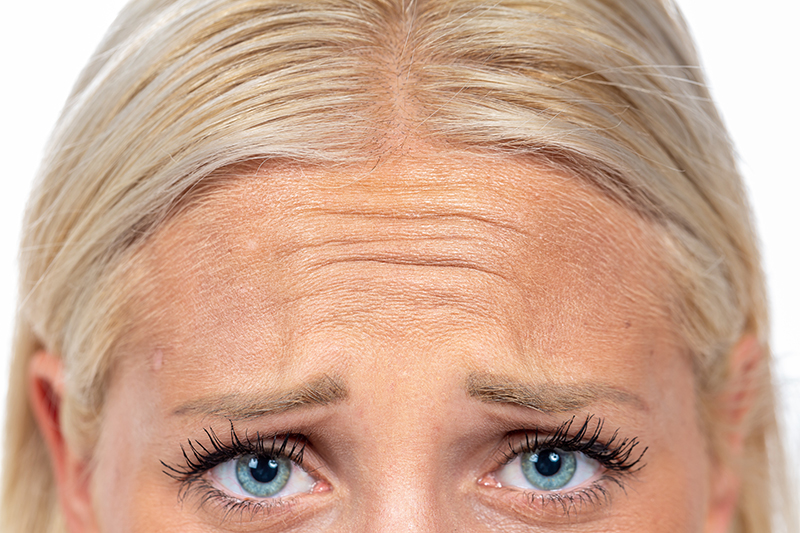 woman's forehead with wrinkles