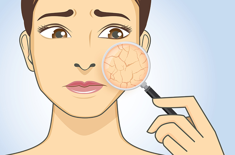 woman illustration with cracked skin