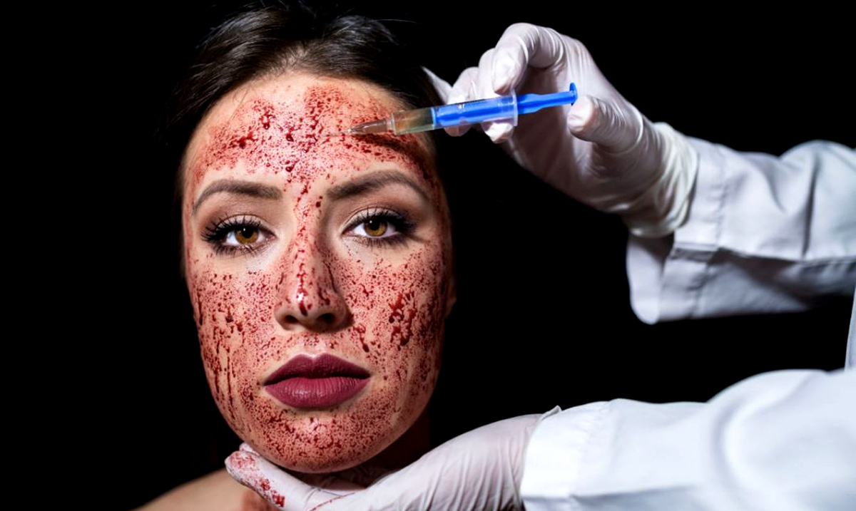 Two People Contract HIV After Receiving Trendy 'Vampire Facials'