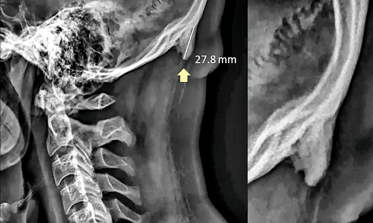 Horns Growing On The Skulls Of The Young, Research Suggest Phones To Blame