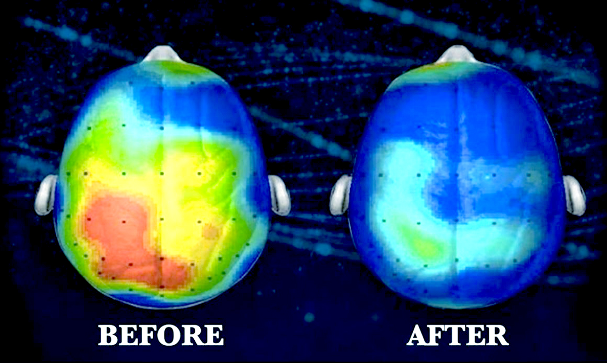 Neuroscientists Claim This Song Decreases Anxiety Up To 65% (Listen!)