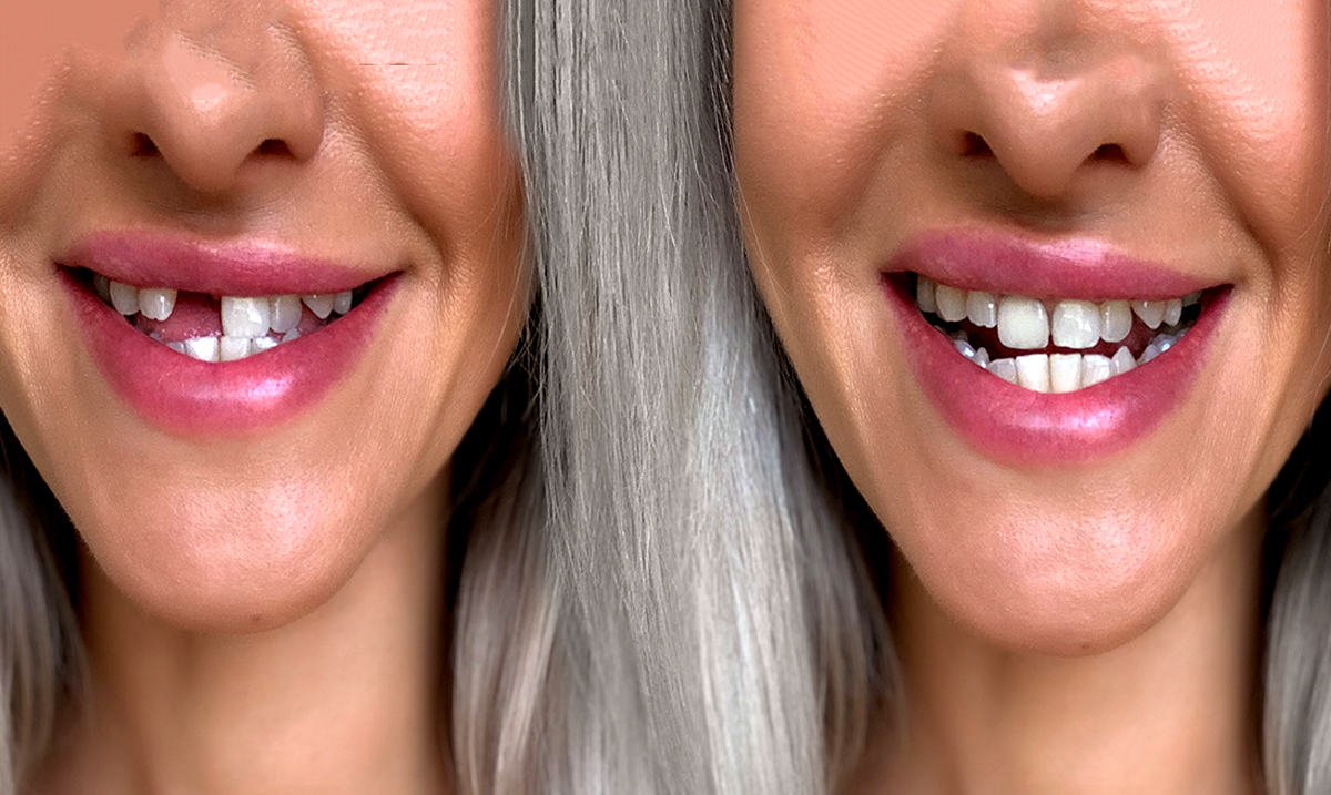 Scientists Develop Gel That Could Actually One Day Regenerate Tooth Enamel