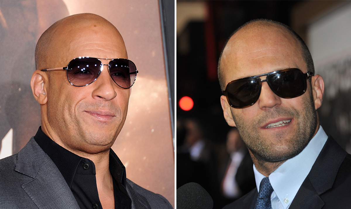 Working Long Hours Could Lead To Baldness, According To New Study