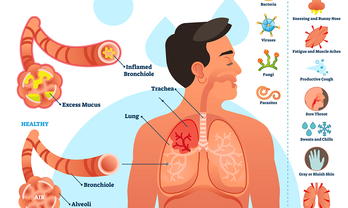 Ways To Eliminate Mucus And Phlegm From The Throat And Chest