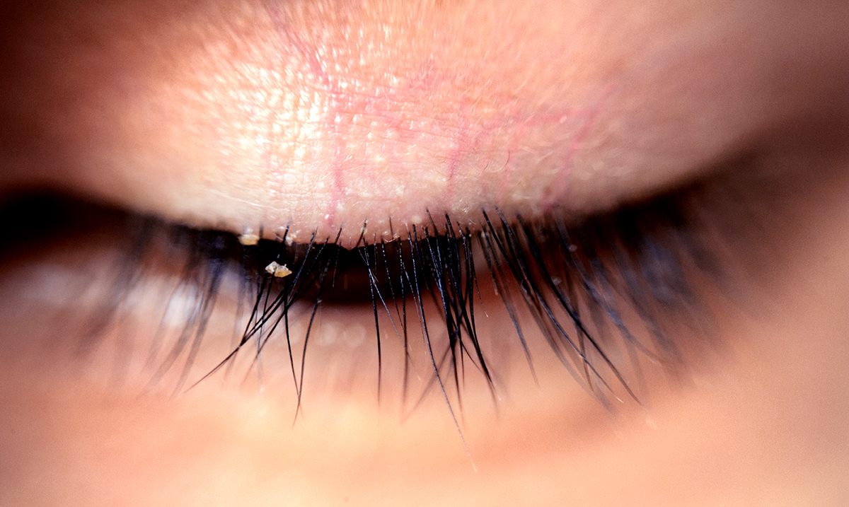 Lash Lice Are Becoming More Common In People With Lash Extensions