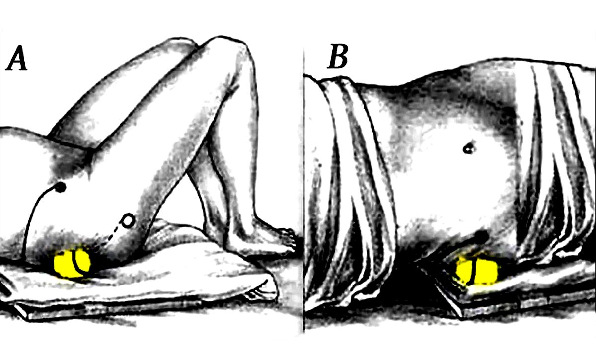 How To Relieve Sciatic Nerve And Back Pain Using Only A Tennis Ball (Videos)