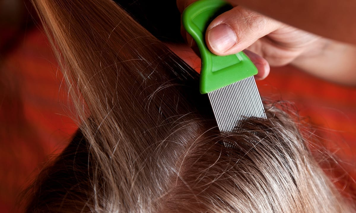 Doctor Warns Parents Still Need To Be Checking For 'Super Lice' Even While Social Distancing