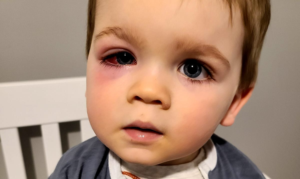 Mom Warns Parents About Hidden Danger Of Bath Toys After Toddler Almost Loses Eyesight