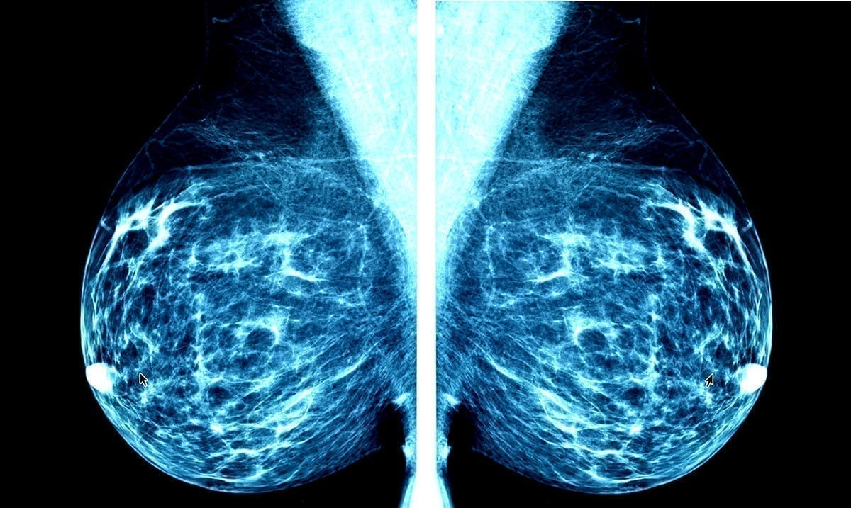 Diet Change Could Convert Aggressive Cancer To More Treatable Form
