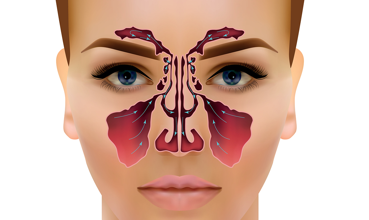 Drain Sinuses And Clear Stuffy Nose With One Simple Move